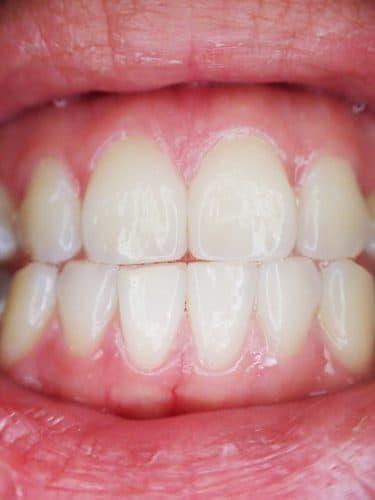 gingivitis dui